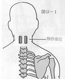 頚部のコリがよく出現する部位